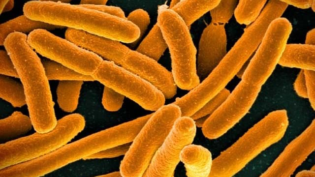 E.coli under a microscope