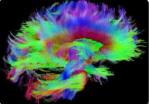 Brain Initiative - Hyperpolarization lab